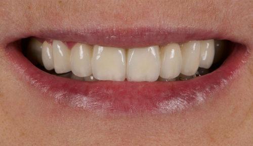 dentition après traitement clinique battah